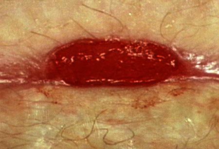 ResidentNet/Wound Healing/granulation